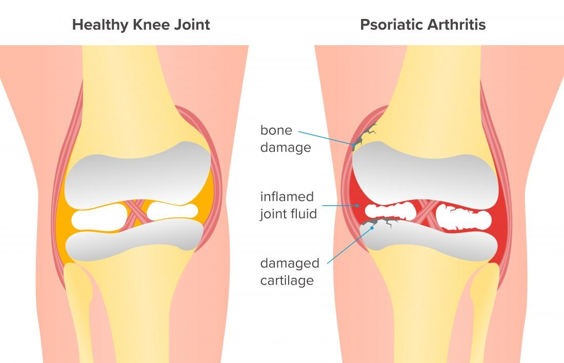 Five Supplements to assist Osteo-joint disease Sufferers