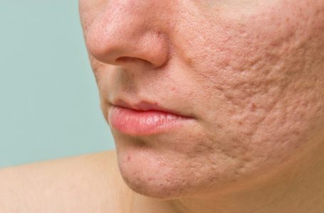 What There's To Discover Experiencing Acne Publish Pregnancy