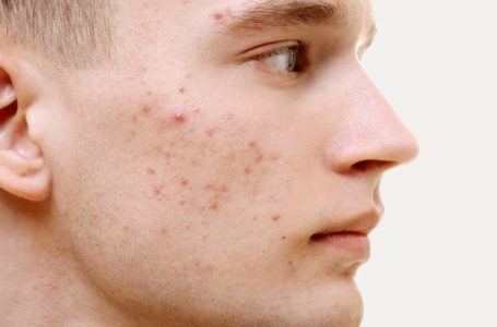 Is Acne Inside Your Ideas? Try These Useful Tips!q