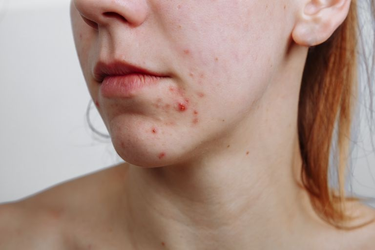 Battling With Acne? Try The Following Tips For More Beautiful Skin!