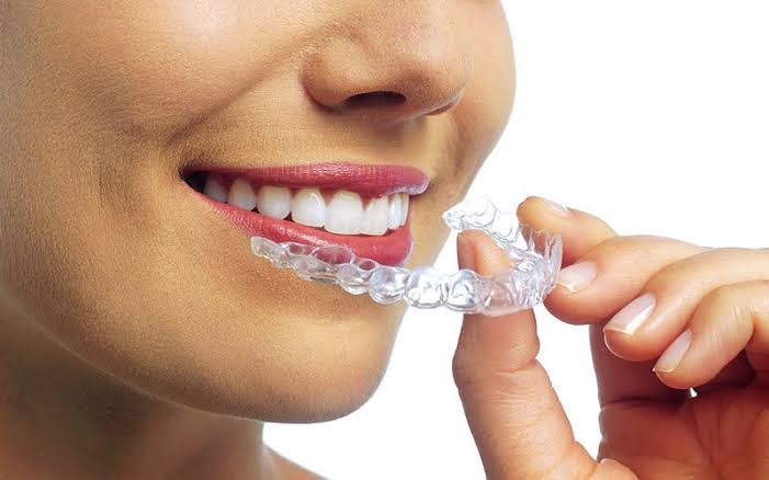 Things You Should Know Before Getting Invisalign Braces