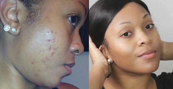 How to Get Rid Of Acne Scars & Fade Pigmentation
