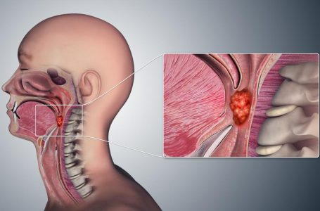 HOW CAN YOU DETECT THROAT CANCER AT HOME