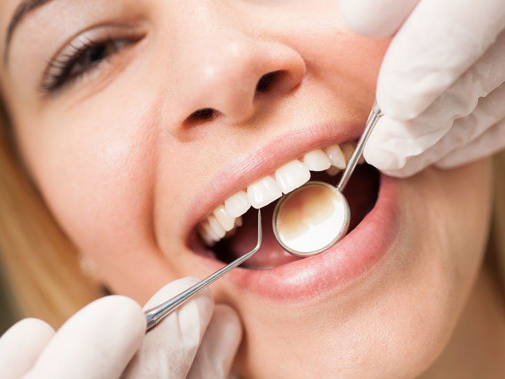 Why Deep Cleaning Is Important for Healthy Teeth?