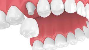 How to Look After Your Dental Crowns: Top Tips to Keep in Mind