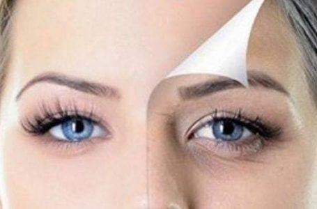 What are the Best Treatments for Dark Eyes Circle Removal