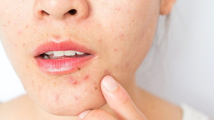 Acne – Three Ingredients to Treat the Common Skin Problem